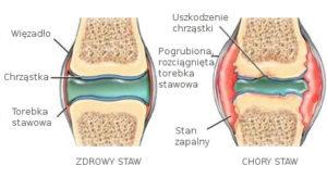 fizjoterapia w bólach kolan